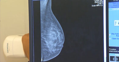 Câncer de mama: iniciativas ajudam na recuperação da autoestima