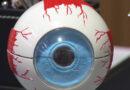 Pessoas com olhos claros devem ter mais cuidado com a proteção dos olhos